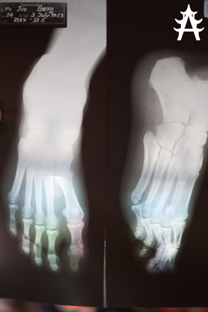 X-Ray image of my foot